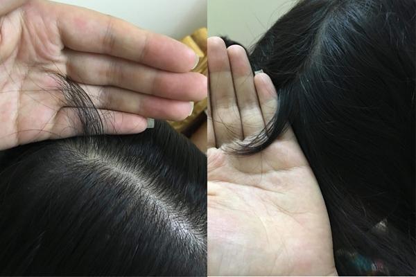 Mẹ giáo viên thoát khỏi rụng tóc nhờ con gái là dược sĩ