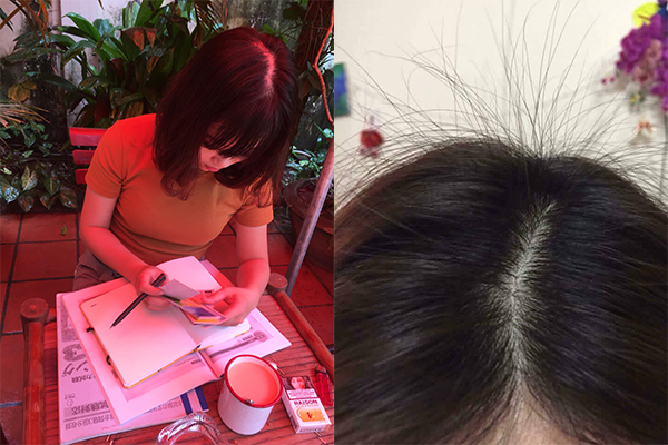 Thoát khỏi rụng tóc sau sinh chỉ sau 1 tháng. Chị Quỳnh cũng không thể ngờ!